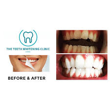 Does Laser Teeth Whitening Work The Teeth Whitening Clinic Cork Cosmetic Dentist In Cork