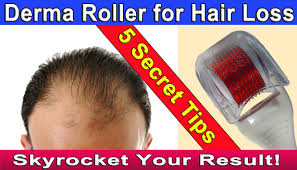 Essential Oils For Hair Loss Microneedling Dermaroller For Hair Loss Or Hair Regrowth 5 Tips