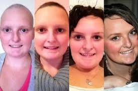 how to grow out hair after cancer young cancer survivor creates time lapse video of hair regrowth