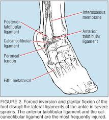 High Ankle Sprain Anatomy The Physician And Sportsmedicine Acute Ankle Sprains