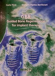 Carti De Specialitate Guided Bone Regeneration