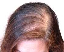 womans hair thinning on sides hair sciences academy