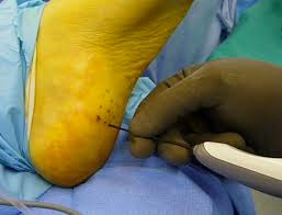 Planters Fasciitis Surgery by Advanced Regenerative Healing Options For Chronic Plantar