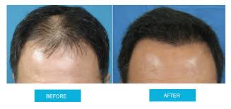 hair transplant costs in the philippines fue cost in australia