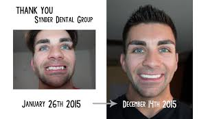 Braces Off Meme - just got my braces off before and after imgur