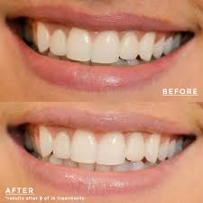 crest supreme whitening strips crest 3d white supreme flexfit whitestrips miss fearless
