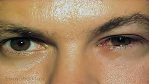 eyes sensitive to light treatment red eyes summit eye care p a