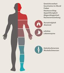 immunschwäche symptome hiv symptome die ersten anzeichen einer hiv infektion