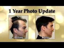 transplant hair second round draft dr brett bolton s hair transplant surgery videos reviews updates