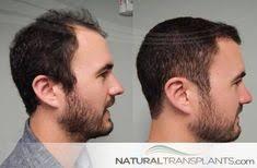 hair plugs for men hair plugs for men thankfulthursday thursdaythoughts