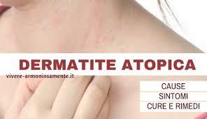 dermite du si e dermatite atopica cause sintomi cura e rimedi