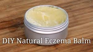 tutorial for making a natural healing cream for eczema and
