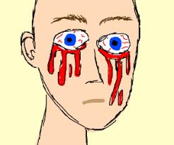 Bleeding Eyes Meme - smallpox booty