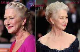 hairstyles that cover face lift scars pictures of helen mirren before after facelift neck lift plastic