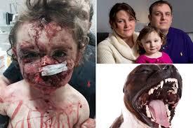 american pitbull terrier jaw dogs bite decatur al london england when mayzee jo gaspa was 18