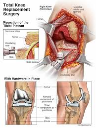 Right Knee Anatomy 114 Best Knee D Images On Pinterest Physical Therapy Knee