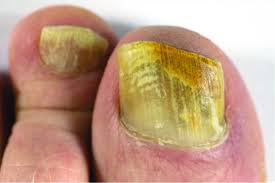 fungal infection of the nails thisdaylive