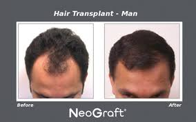 neograft recovery timeline neograft hair transplants in new jersey for men and women