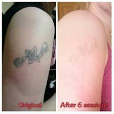 dermabrasion for tattoo removal compared with laser tattoo