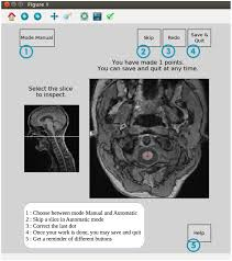 spinal cord toolbox documentation correction propseg