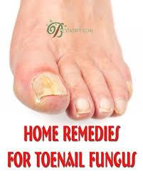 best 25 toenail fungus remedies ideas on pinterest toenail