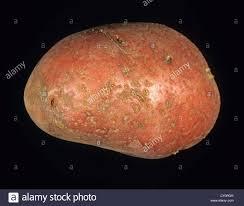 pilonidal cyst location cyst skin stock photos u0026 cyst skin stock images alamy