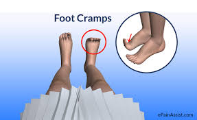foot crs treatment causes ways to get rid of crs symptoms