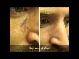 laser tattoo removal cost springfield mo youtube