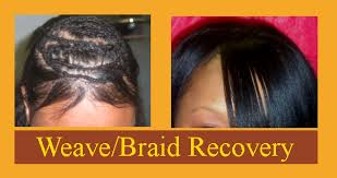 hair weaves for thinning hair treatment for female hair loss la hair extensions atlanta