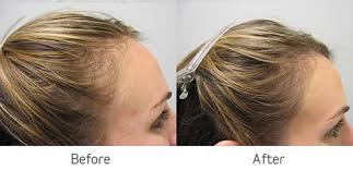 viviscal before and after hair length afro viviscal clinically proven hair growth supplement viviscal