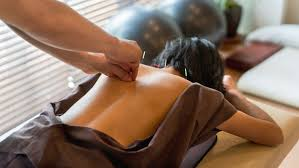 acupuncture grossesse si e l acupuncture pour maigrir après l accouchement magicmaman com