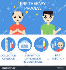platelet rich plasma injection procedure prp stock illustration