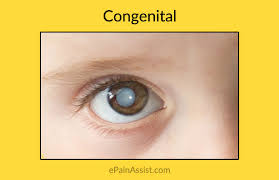 Can Cataracts Lead To Blindness Congenital Or Acquired Cataracts In Children Symptoms Causes