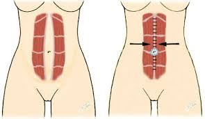 Abdominal Exercises After C Section Best Abdominal Exercises