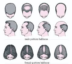 treatment for hair loss india new hair style collections