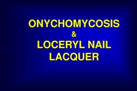 ppt onychomycosis u0026amp loceryl nail lacquer powerpoint