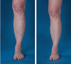 for veins advanced cardiovascular and vein center