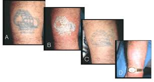 tattoo removal prices toronto laser tattoo removal toronto non