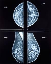 mammogram memes