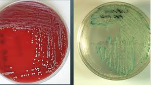 Candida And Hair Loss Candida Albicans Growth On Blood Agar U2013 Yeast Infection And