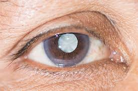 Can Cataracts Lead To Blindness What Is A Cataract My Cataract Journey