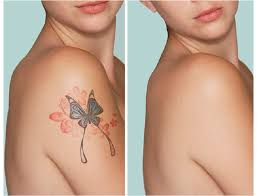 does getting tattoo removed hurt 1000 geometric tattoos ideas
