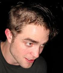 hair cuts for thining and bald spots is robert pattinson losing his hair twilight star sports bald