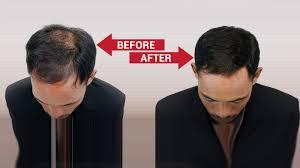 hair bonding hair bonding treatment non surgical hair restoration in noida