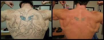 tattoo removal does it work tattoo removal how does it work and how much does it cost