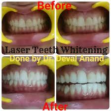 whitening amazing laser teeth whitening dental clinic teeth