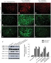 neurosteroid allopregnanolone suppresses median nerve injury