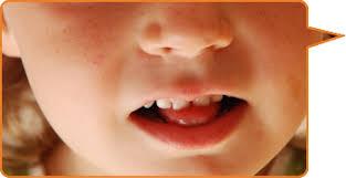 muskelschwäche bei kindern kauen schlucken sabbern home
