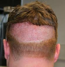 how thick is 1000 hair graft dr feller patient 1000 fue 10 months post op hairlosstalk forums