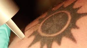 how do lasers remove tattoos by helping you them out nerdist